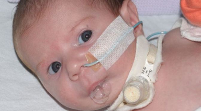 Pediatric Tracheostomy (trach) Care: Crucial Instructions