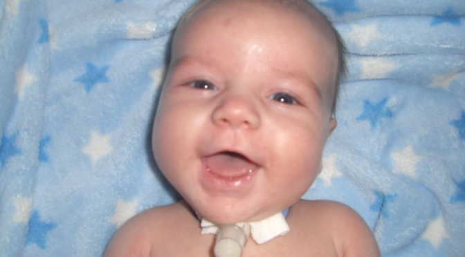 All You Need To Know About Vent and Trach Care At Home
